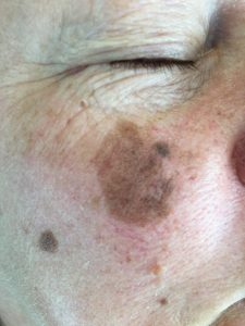 Post Inflammatory Hyperpigmentation