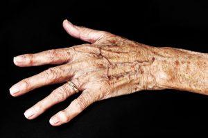 lentigo age spots